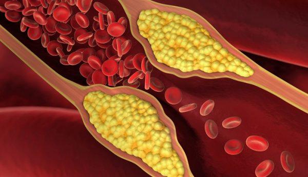 1543335490 holesterin ateroskleroz
