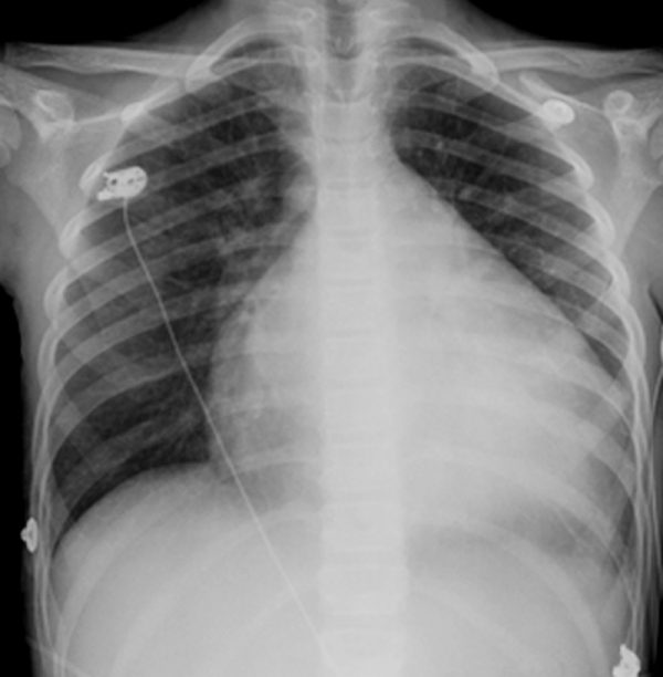 523 dilated cardiomyopathy chest x ray s116 springer high ru