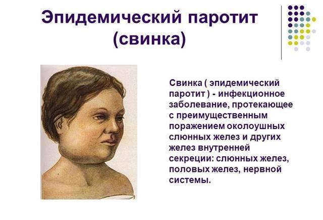 Свинка (паротит) у детей