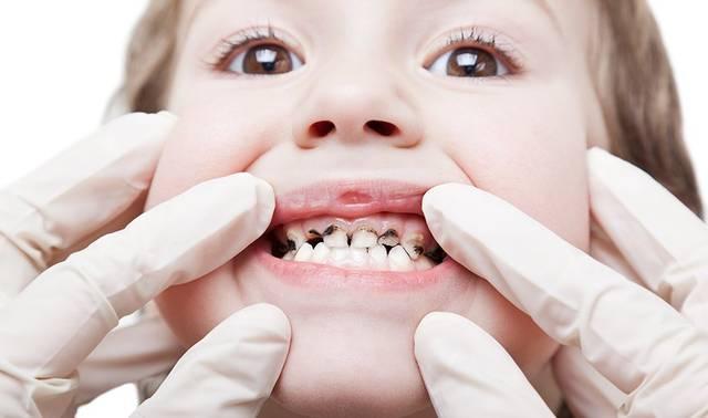 Черные зубы у детей