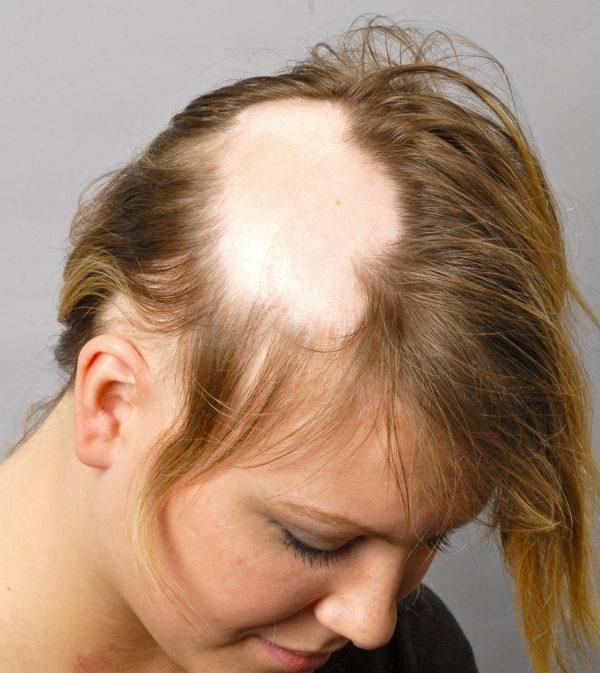 foto ochagovoy alopetsii