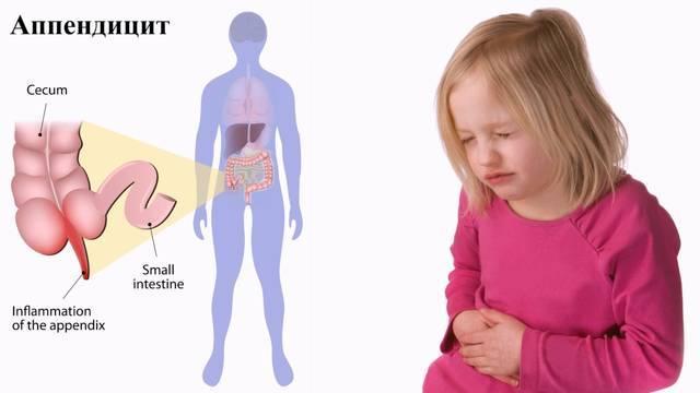 Как определить аппендицит у ребенка?