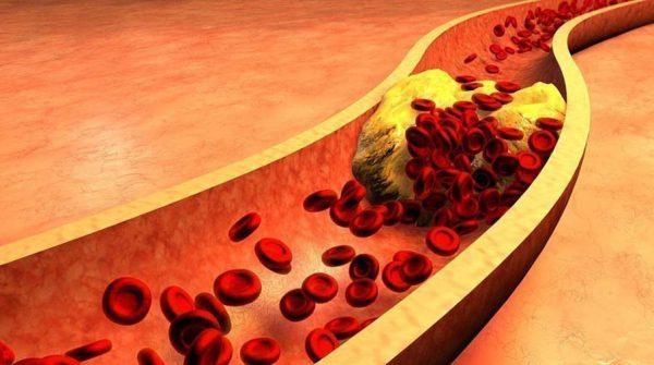 kak ponizit holesterin v krovi