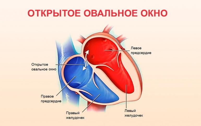 Открытое овальное окно в сердце у детей