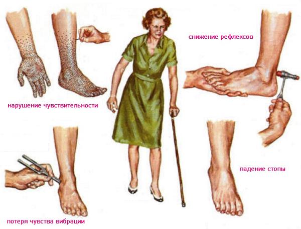 Симптомы при полинейропатии